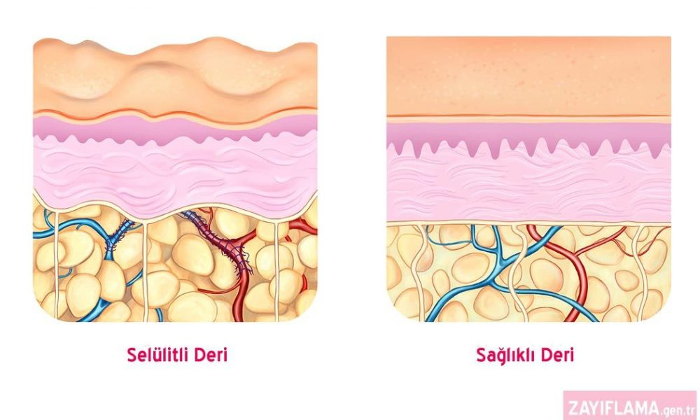 Selülit Nedir? Öncelikle selülit bir hastalık değil kozmetik bir sorundur.