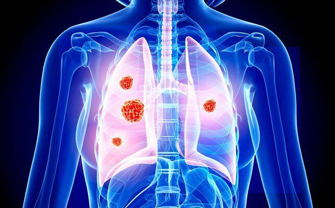 Yaygın Kanser Türleri